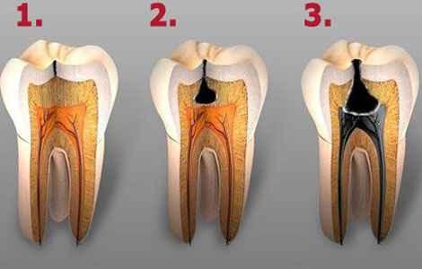 Кариес зубов причины и симптомы, как выглядит кариес