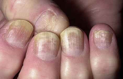 Ногтевой грибок лечение