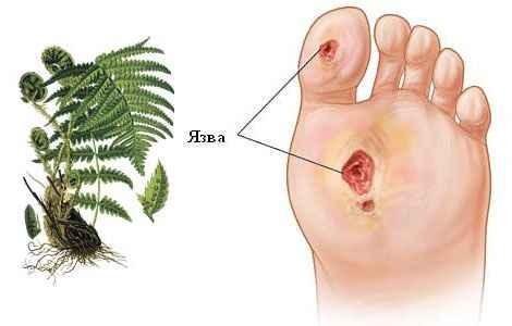 Трофические язвы на ногах могут быть результатом разных заболеваний.  Им характерны нарушения обмена веществ в...