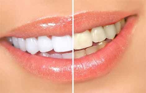 Домашнее отбеливание зубов