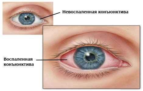 Ячмень на глазу причины, симптомы и лечение в домашних условиях