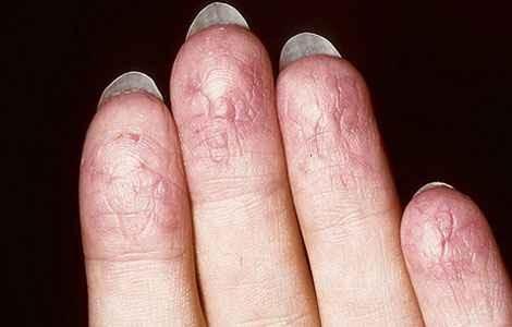 Лечение экземы на пальцах рук