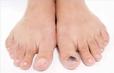 Почему чернеют ногти на ногах?