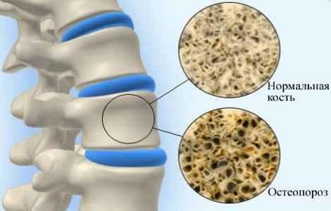 Остеопороз лечение в домашних условиях