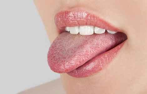 Налет на языке. Причины и лечение