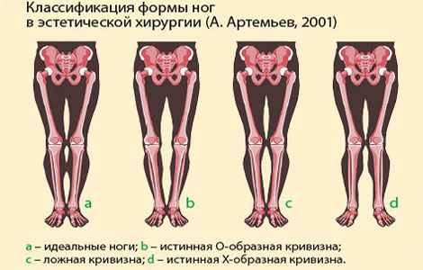 Как исправить форму ног