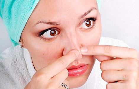 Лечение угревой сыпи на носу