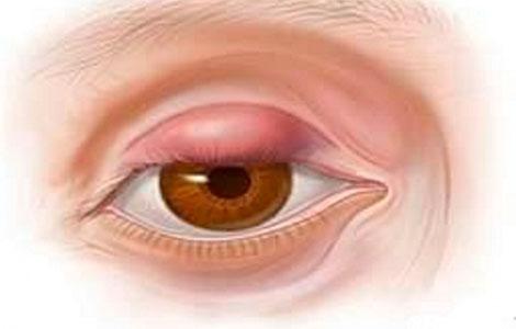 Что делать если вскочил ячмень на глазу