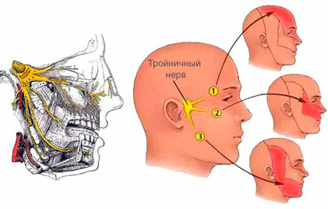 Что такое воспаление лицевого нерва?