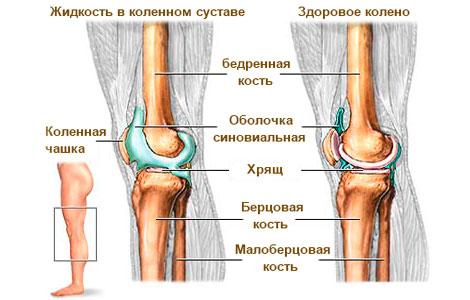 Как убрать жидкость из колена