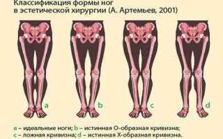 Что делать если ноги кривые?