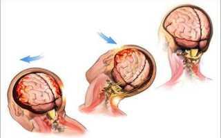 Сотрясение головного мозга лечение в домашних условиях