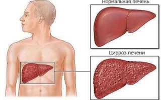 Лечение цирроза печени народными средствами, травами