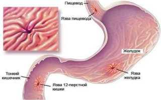 Народные методы лечения от язвы желудка