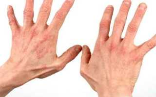 Как вылечить дерматит, симптомы и причины