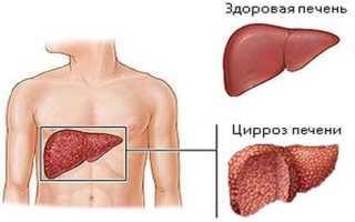 Как лечить цирроз печени, причины и признаки