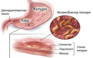 Хеликобактер пилори лечение народными средствами