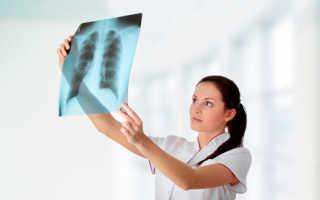 Можно ли делать флюорографию при беременности