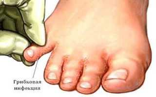 Лечение микоза стопы народными средствами