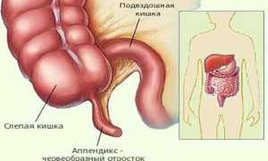 Симптомы воспаления аппендицита у подростков