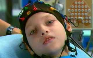 Эпилепсия (эпилептический припадок) у детей симптомы и причины