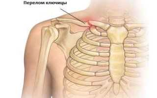 Переломы костей, ключицы, позвоночника у детей