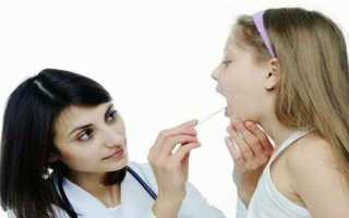 Как лечить аденоиды у детей без операции