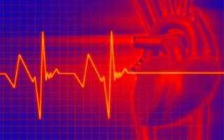 Лечение тахикардии сердца в домашних условиях