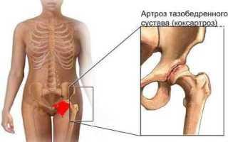 Лечение коксартроза народными средствами