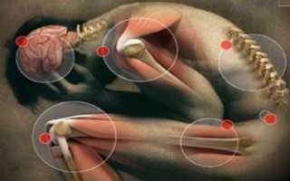 Как лечить ревматизм, симптомы и признаки