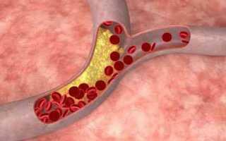 Как снизить холестерин без таблеток