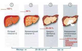 Лечение гепатита С в домашних условиях