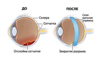 Симптомы отслоения сетчатки глаза