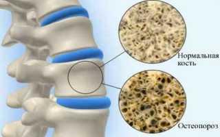 Остеопороз лечение народными средствами