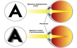 Лечение астигматизма в домашних условиях