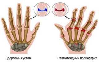 Ревматоидный полиартрит лечение народными средствами