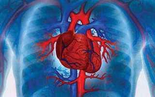 Сердечная астма лечение и симптомы