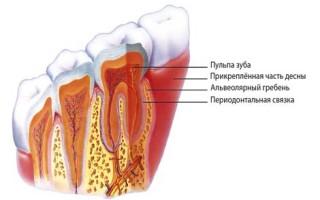Заболевания десен и зубов