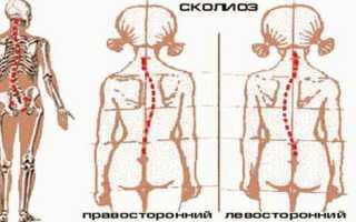 Лечение сколиоза в домашних условиях