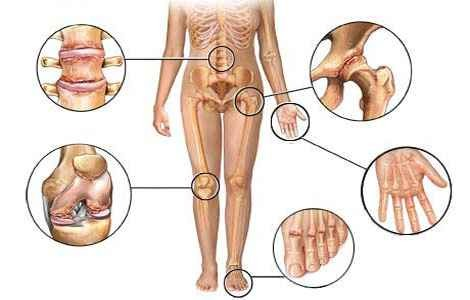 Артрит суставов - причины