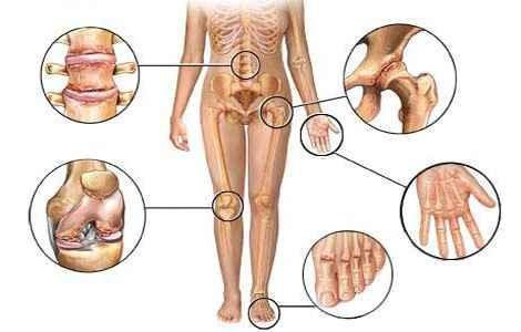 Причины артрита суставов