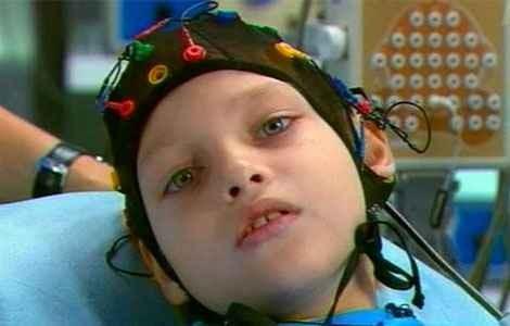 Эпилептический припадок у детей