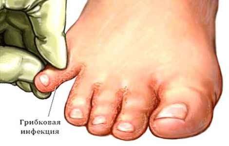 Микоз стопы