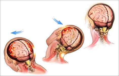 Сотрясение головного мозга лечение