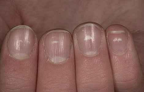 От чего на ногтях белые пятна