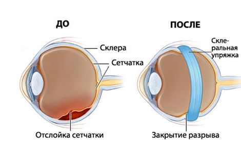 Признаки отслоения сетчатки глаза